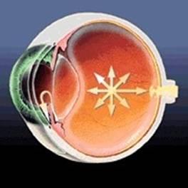 Hipertensión Ocular; Sospecha de Glaucoma